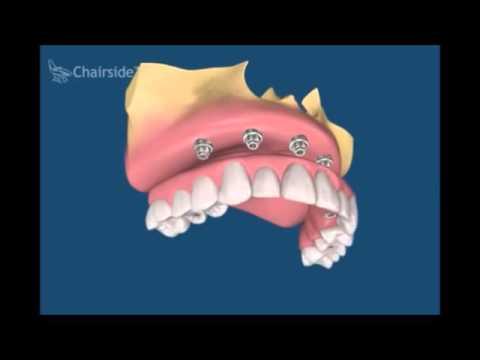 Имплантация зубов под ключ, цены 28 000 руб клиника