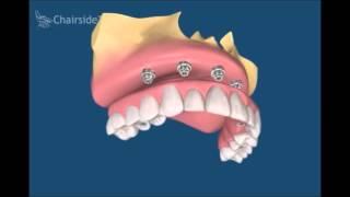 Имплантация зубов. Клиника Регенеративной Стоматологии Geneva в Одессе.(, 2016-04-11T14:21:16.000Z)