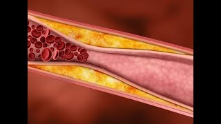 ★ How To Remove Plaque From Arteries Without Surgery