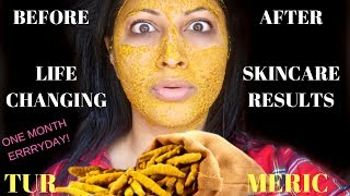 *NEW* HOW TO AVOID FACIAL HAIR & ACNE WITH WILD TURMERIC DIY | BEFORE/ AFTER RESULTS OF TURMERIC