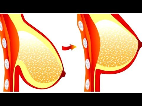 How to tighten breast skin in 3 days thumbnail
