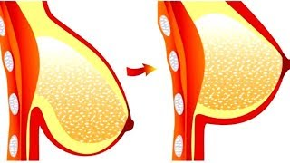 How to tighten breast skin in 3 days