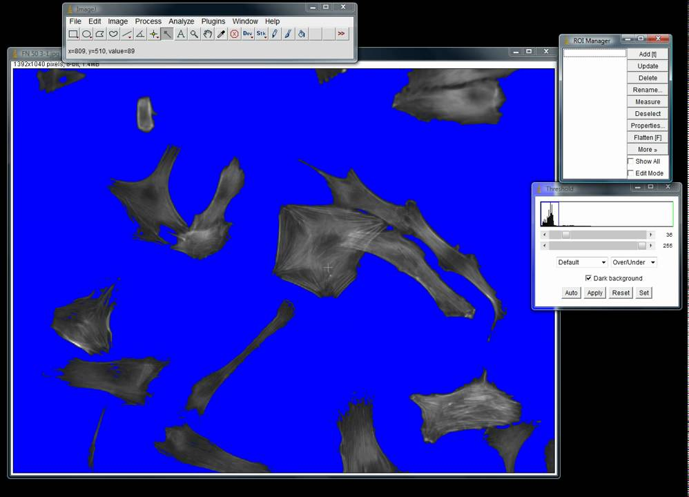 How to take area measurements of cells using ImageJ - YouTube