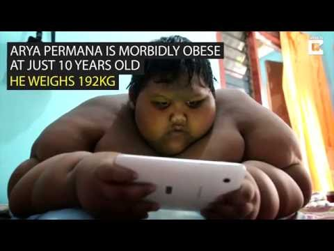 Morbidly obese Indonesian child is put on crash diet over health fears