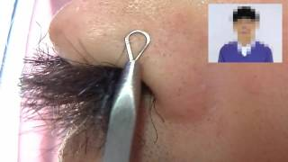 角栓が巨大な鼻毛から猛烈に伸びてきました。除去すべく治療を施してい...