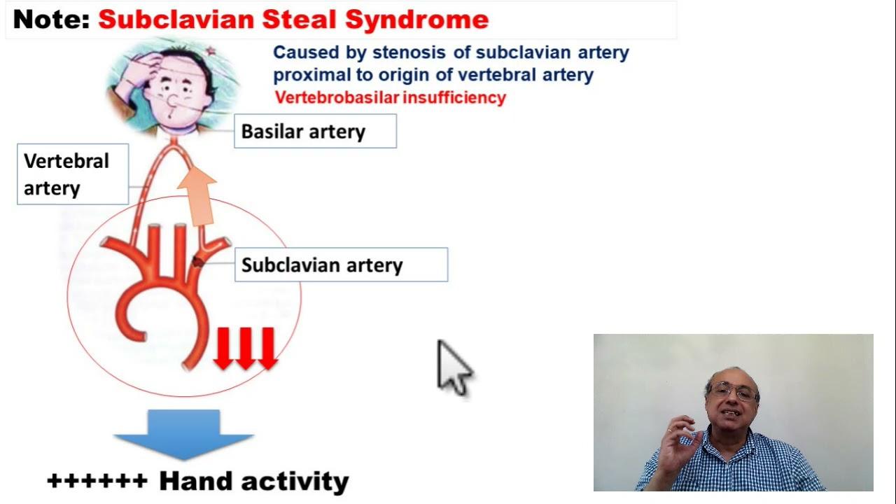 محاضرات باطنة Neurology Transient Ischemic Attacks TIA Lecture (4)