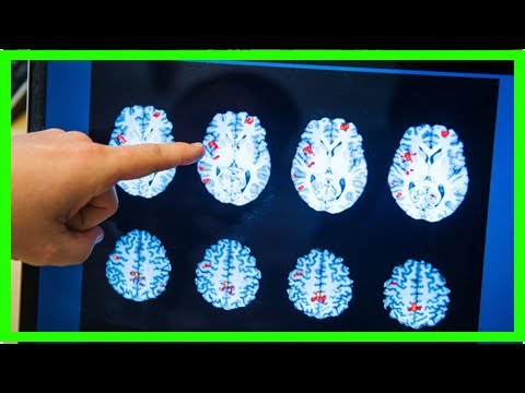 News-brain scans can detect the signs of depression and anxiety