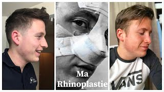 MON EXPERIENCE - Rhinoplastie - Chirurgie esthétique (Story Time)