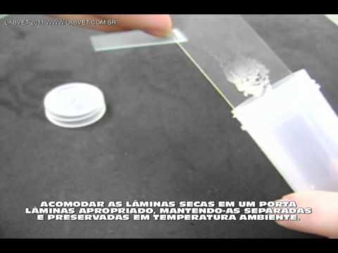 Vídeo Exame de citologia