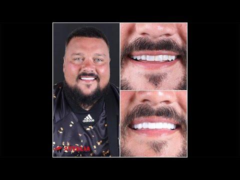 Charlie Sloth (DJ) | Attelia Dental Turkey