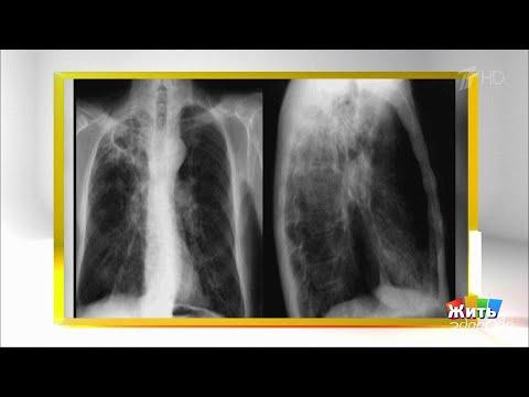 Мифы и правда про туберкулез. Жить здорово! 24.03.2020