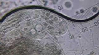 현미경동영상-동원현미경으로 찍은 짚신벌레