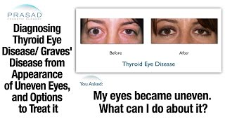 Thyroid Problems can Cause Uneven Eyes - Diagnosis and Eye Surgery Important Before Cosmetic Surgery