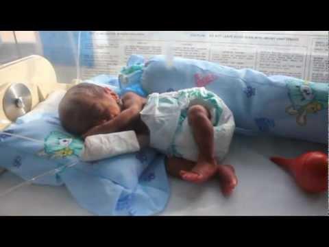 PREMATURE BABY JORGE WAYNE a.k.a HUGE (7 months of birth 1 ...