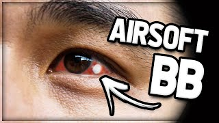 Airsoft KID Gets BB In Eye! (GETS STUCK)