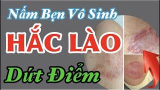 Khắc Tinh Của Bệnh Hắc Lào ( Lác), Nấm Bẹn - Dứt điểm KHÔNG Tái Phát