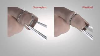 Repeat youtube video Circumplast vs Plastibell circumcision