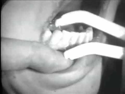 Dental Floss and Toothbrushing Techniques