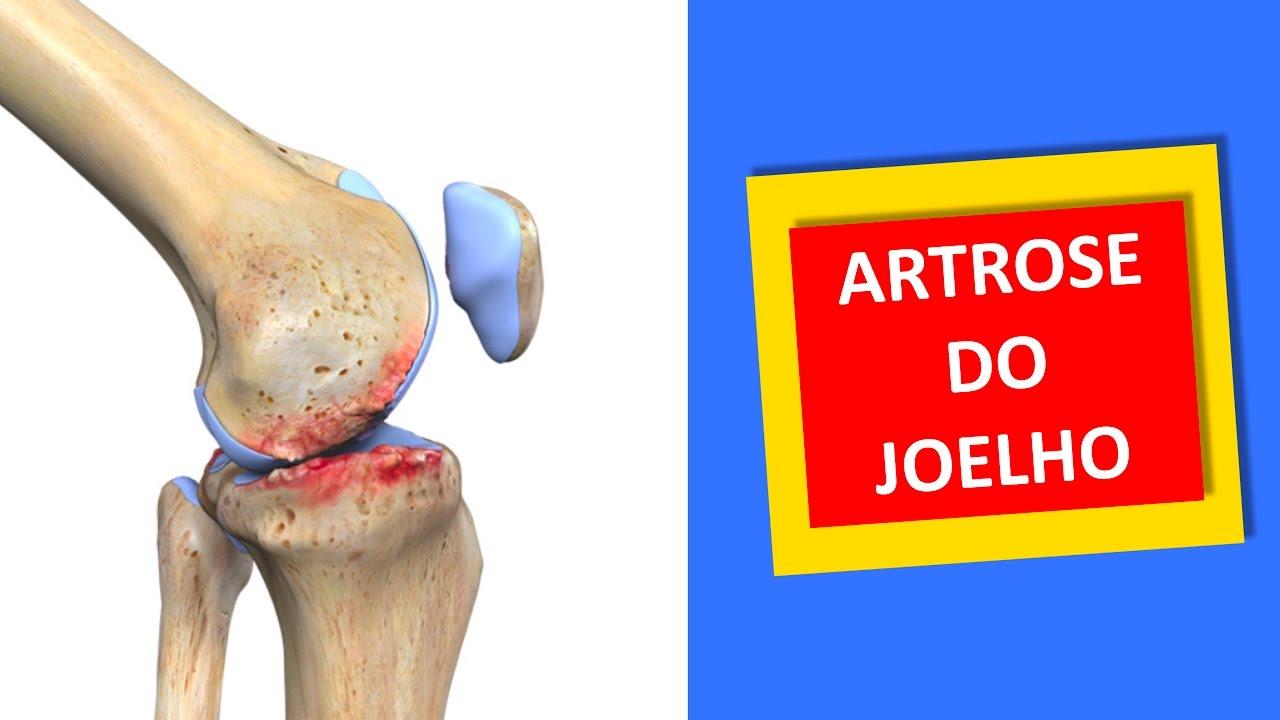 Resultado de imagem para Artrose do joelho