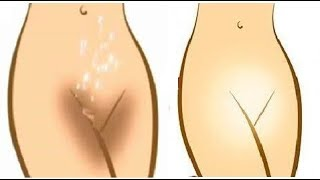 How to Lighten Private Areas & Vagina || SAFE Skin Lightening Sensitive Area Pigmented Skin