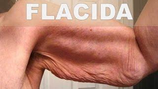 ☞ Remedios caseros para la piel colgante o flácida – Como combatir la piel flácida en casa