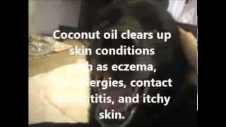 Dry Skin Remedy for Dogs, Flea Allergies, Amazing Benefits of Coconut Oil for your Dog