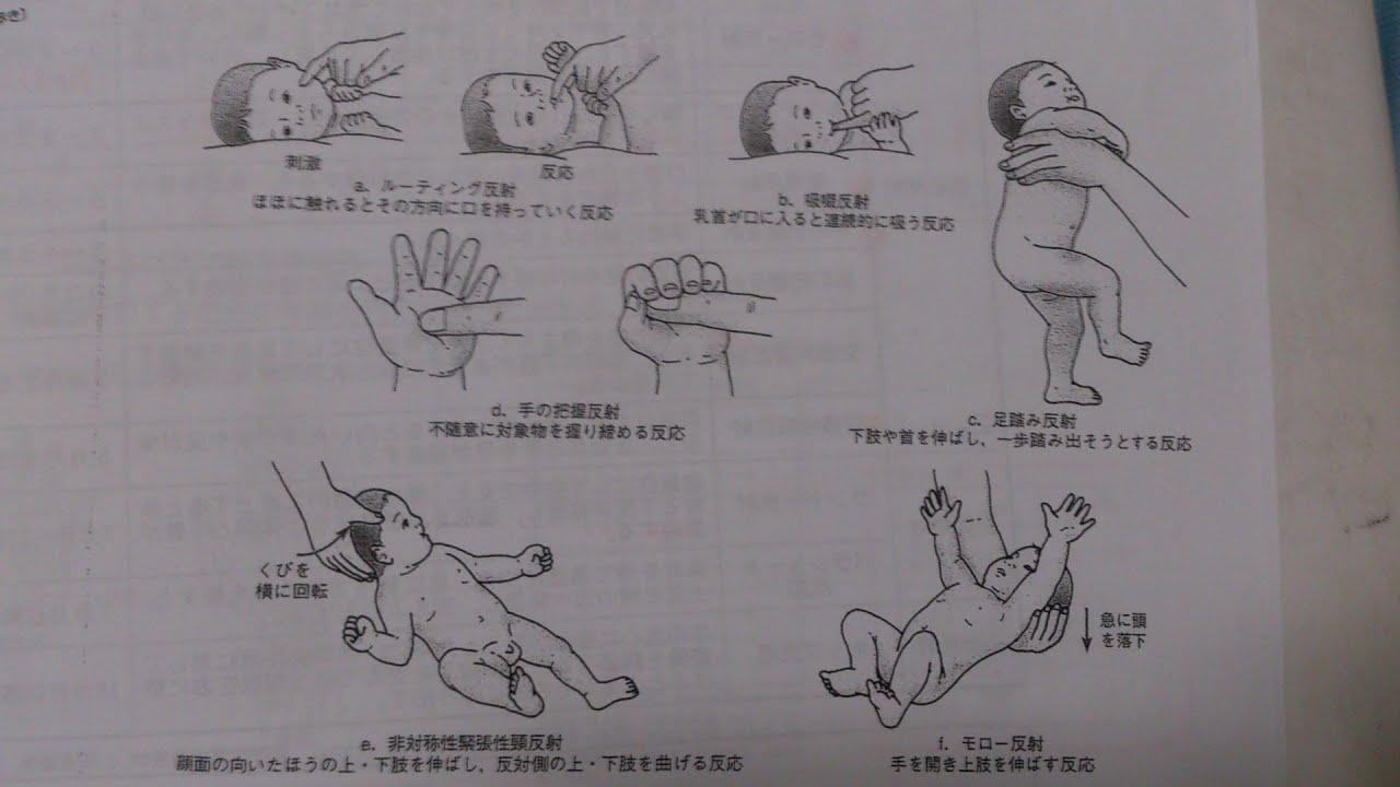 新生児 モロー反射