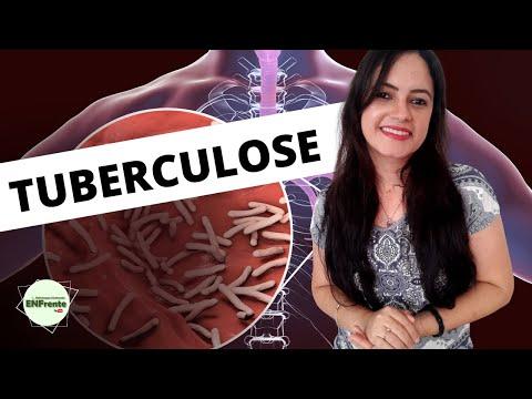 Tuberculose (Aula Completa) - Profa. Juliana Mello