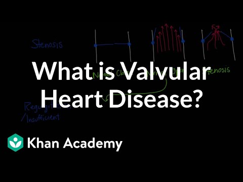What is valvular heart disease? | Circulatory System and Disease | NCLEX-RN | Khan Academy