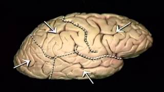 Neuroanatomia Repaso Cerebro, Tallo y Cerebelo 2