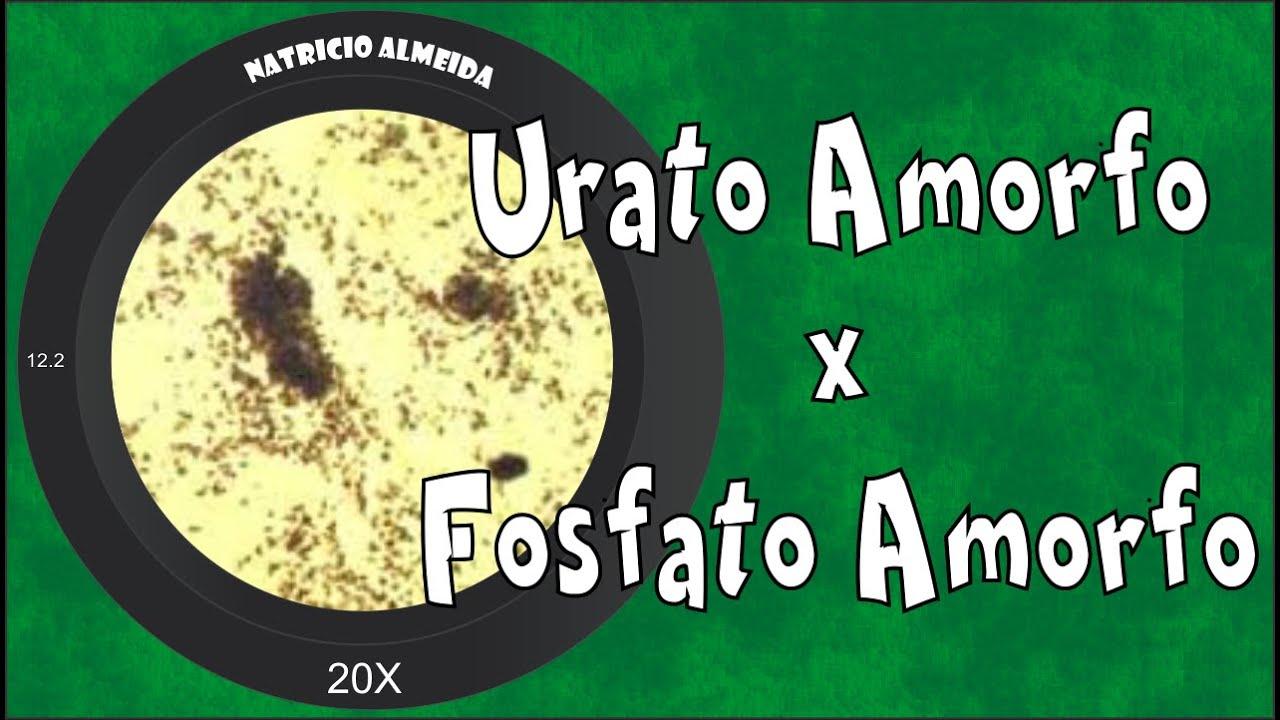 Exame de urina uratos amorfos