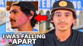 This is why Carlos Lastra Quit Braille Skateboarding