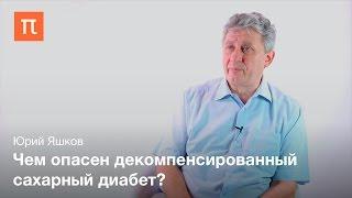 Хирургическое лечение сахарного диабета II типа - Юрий Яшкой(Это видео было опубликовано на сайте ПостНаука (http://postnauka.ru/). Больше лекций, интервью и статей о фундаментал..., 2016-02-01T12:10:40.000Z)