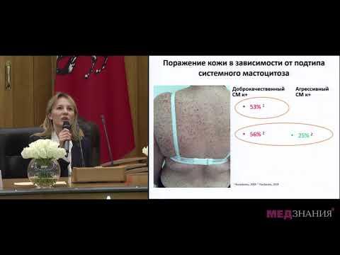 11. Кожные проявления мастоцитоза. Алгоритм диагностики и терапии. П.М. Пятилова