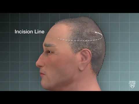 Tony's Story: Eliminating a Complex Brain Tumor