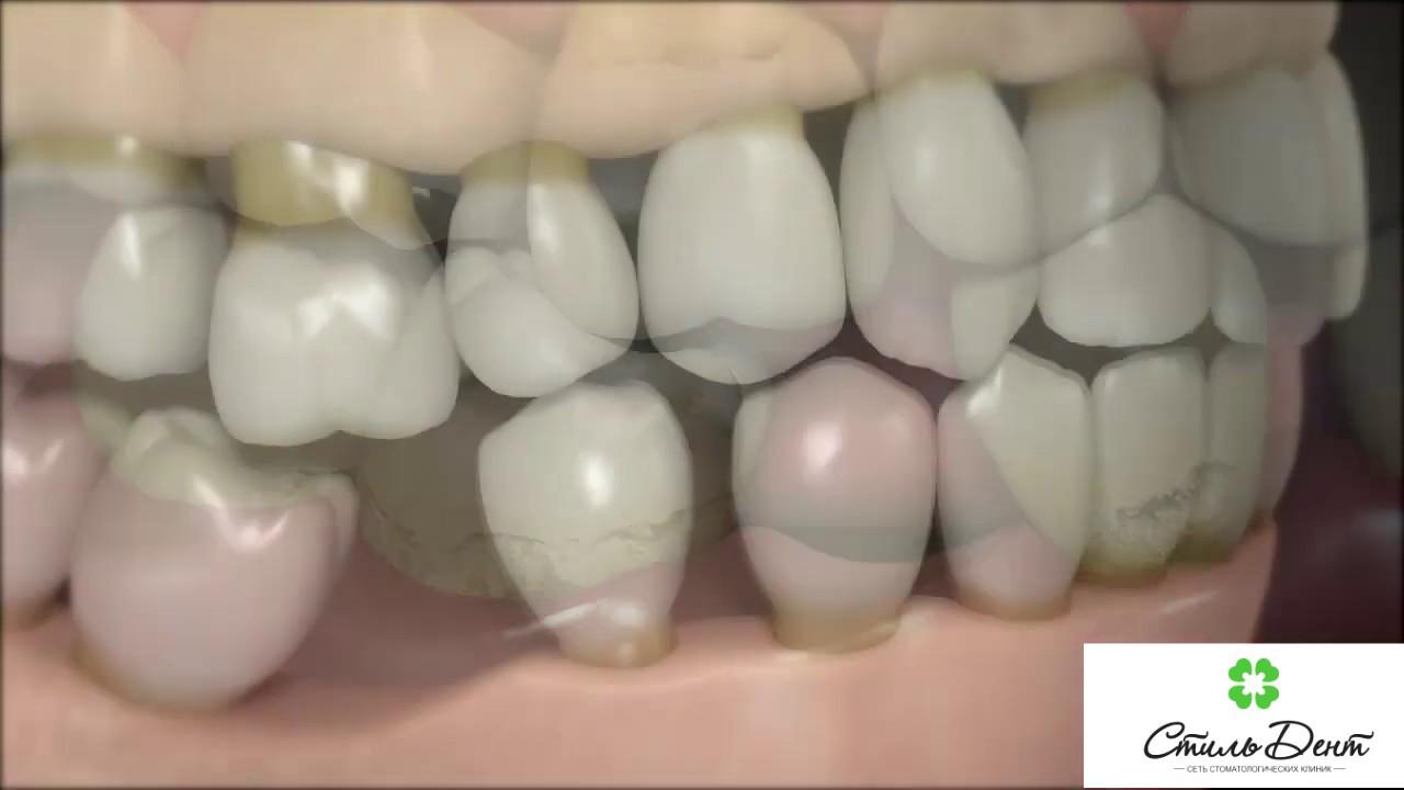 Что происходит если отсутствует один зуб