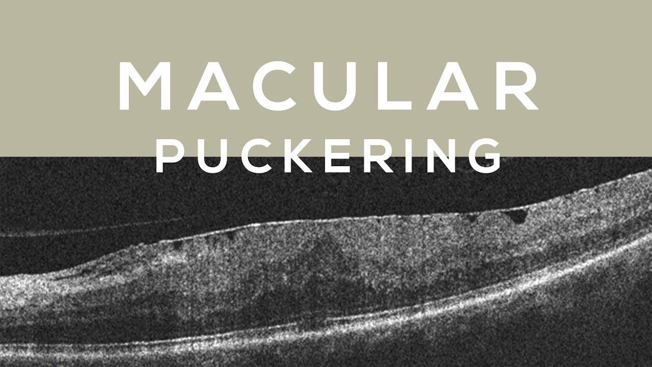 Testimonies Macular Puckering Healed Youtube