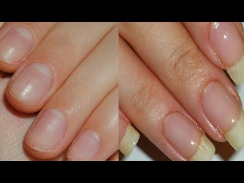 How To GROW Long Strong Nails Fast At Home   Grow Long and Strong Nails Super Fast Watch this now