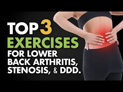 Top 3 Exercises For Lower Back Arthritis, Stenosis, And DDD.