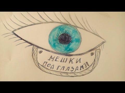 Отёки вокруг глаз - Причины и лечение