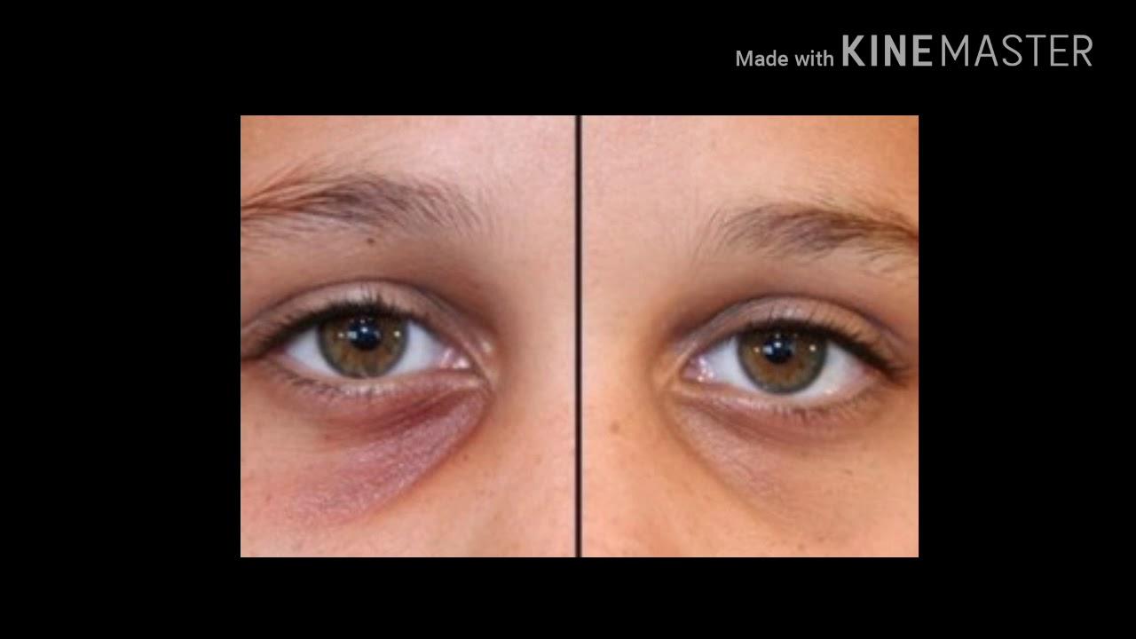 How to get rid of sunken eyes tips2 - YouTube