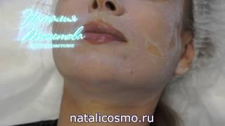 Серединный пилинг. Косметолог Наталия Толстова