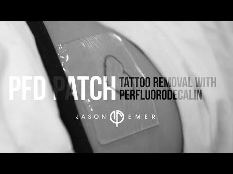 Tattoo Removal | Laser Tattoo Removal with PFD Patch | Beverly Hills, CA | Dr. Jason Emer