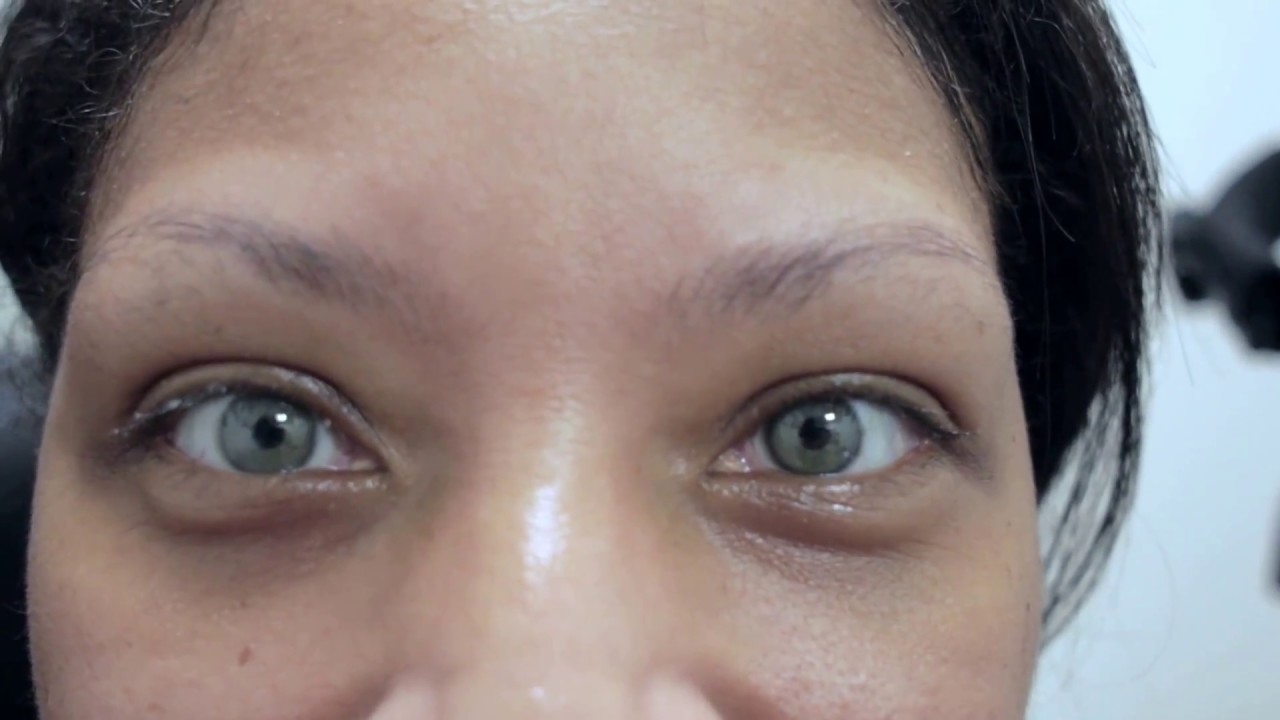 Mother and Daughter Eye Color Change Surgery Eligibility ...