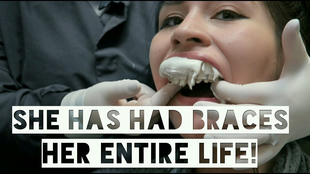 Getting Braces Off After 15 Years Full Experience Youtube