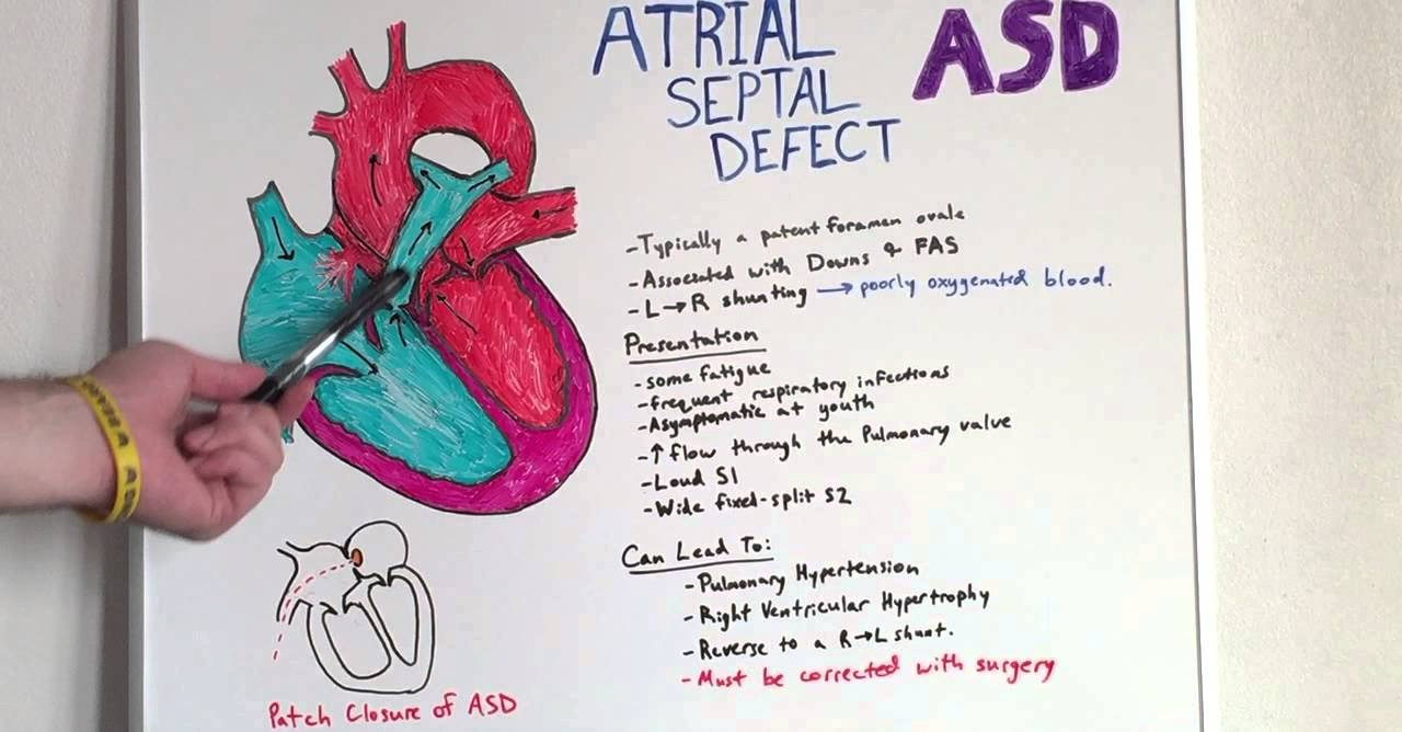Atrial Septal Defect - Anatomy Lecture for Medical Students - USMLE ...