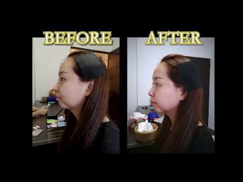 Beauty Acupuncture Testimonial 陆式针灸美容