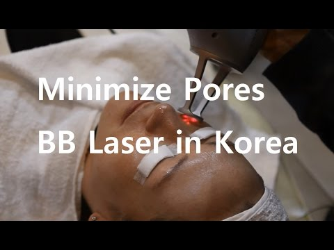Pore Shrinking with BB Laser in Korea | Flawless Skin