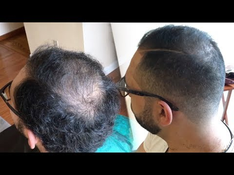 regrow thinning hair 5 minutes