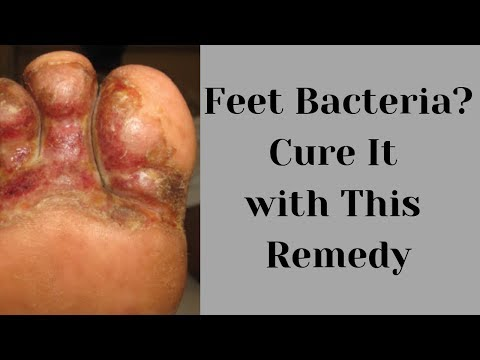 how-to-treat-bcterial-feet-infection-naurally-at-home